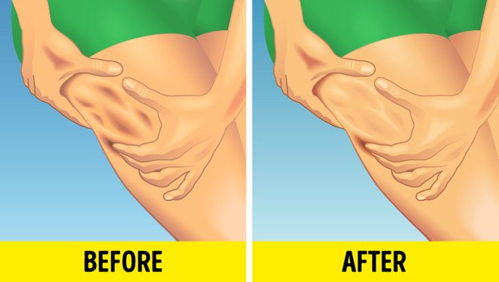 How to reduce cellulite