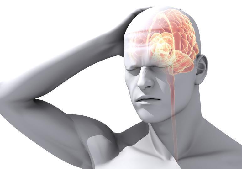 What is a migraine headache?